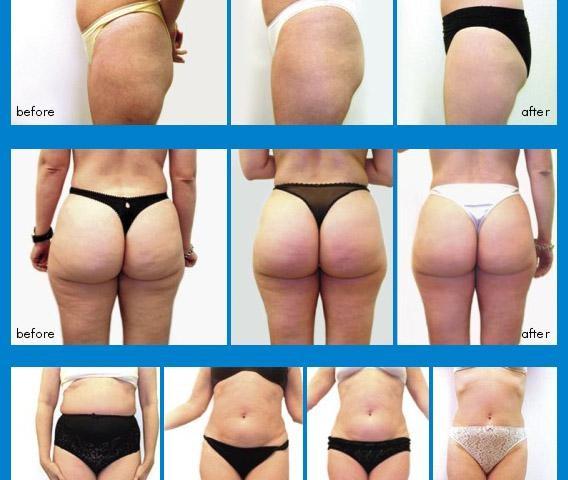 Как похудеть за неделю на 5 кг минимум: недельные